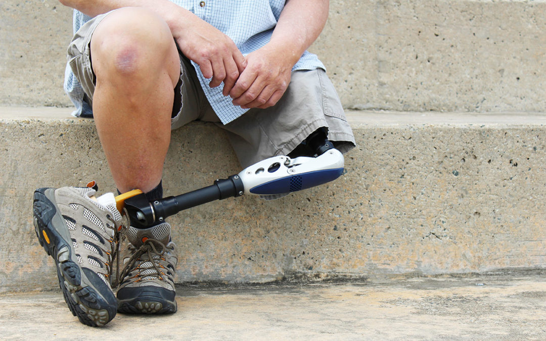 A prosthetic leg, if you are in need of a prosthesis in Knoxville, TN, and Johnson City, TN call Victory, leader in prosthetics, artificial leg and limb specialists.